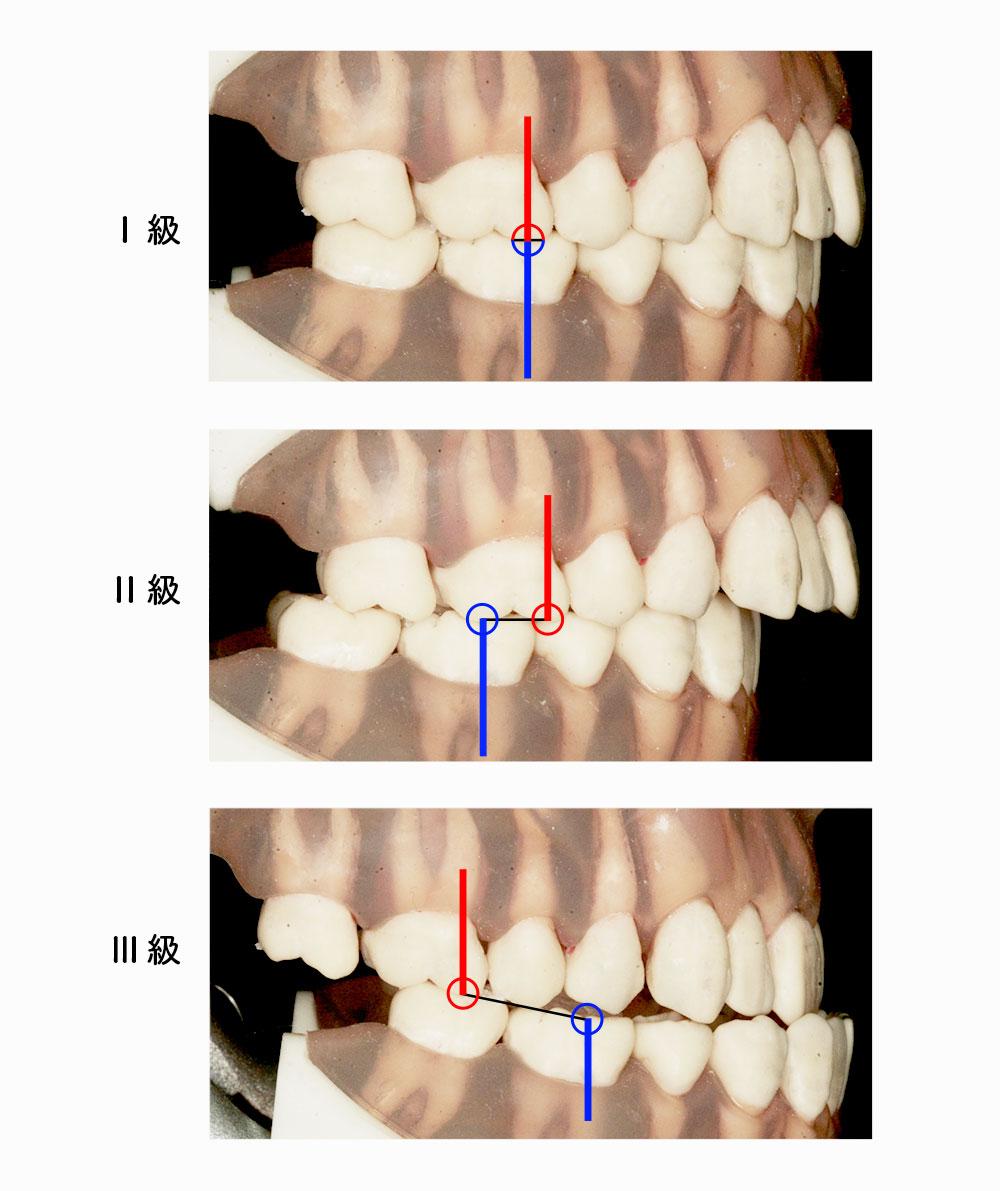 Angleの不正咬合の分類の写真