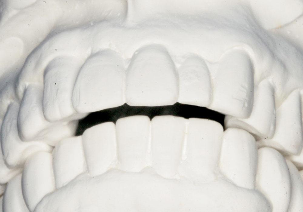 前歯が当たらない? 麺類が前歯で噛み切れない2つの理由