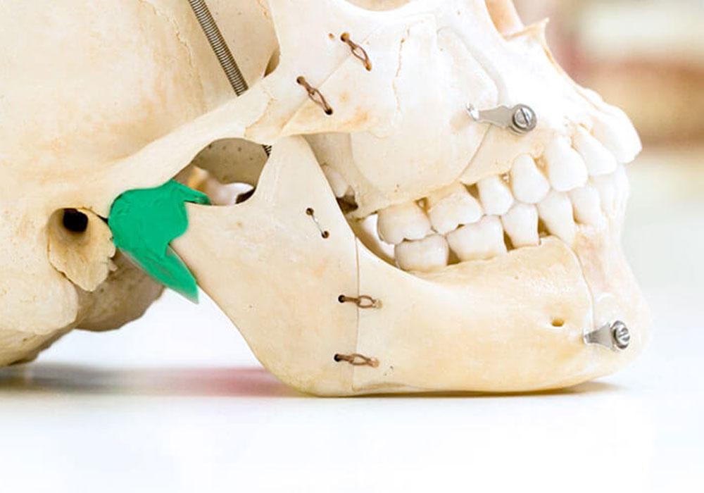 歯周病の原因は噛み合わせの悪さ? 気になるその関係と対策法
