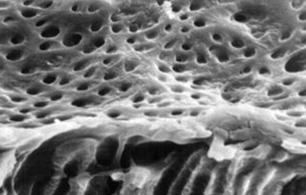 電子顕微鏡で歯髄側から見た象牙細管(無数の穴が細管の入り口)