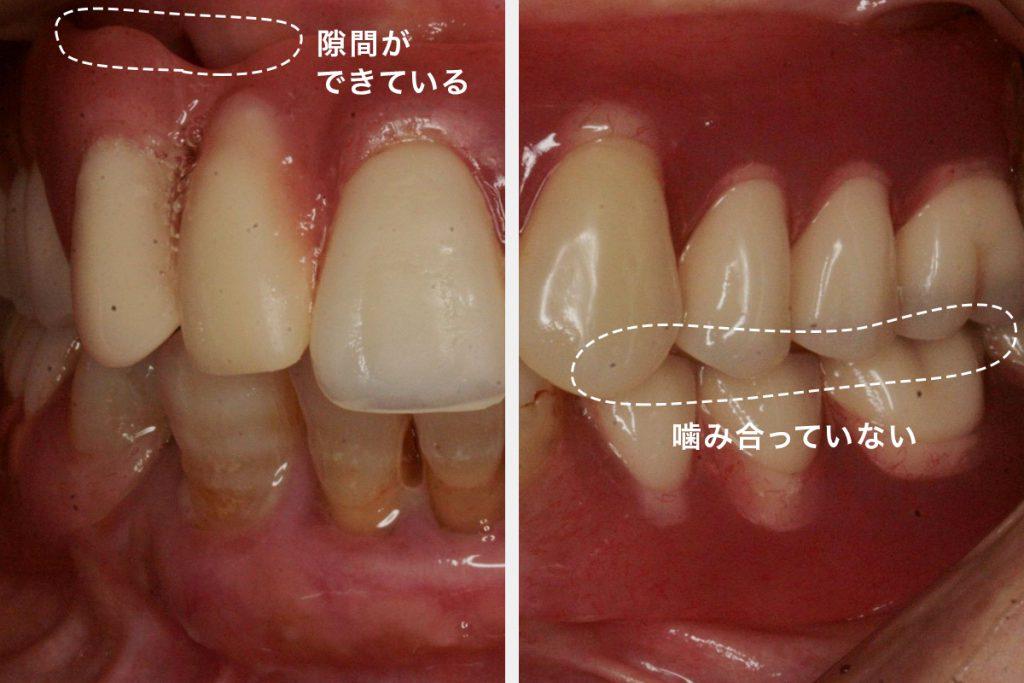 Sさん初診時の口腔内の写真